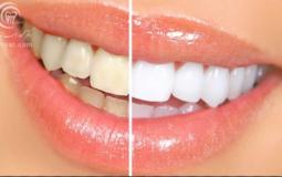 کسانی که بخار معده دارند دندانهای خراب تری دارند