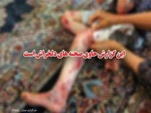 تصاویر/زخم پروانهای روی بال کودک شیرازی